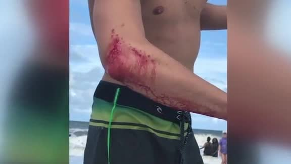 Pro surfer gets bitten by shark, heads to bar instead of hospital
