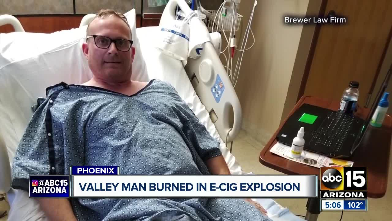picture Man Suffers Serious Burns After His iPhone Explodes in His Pocket