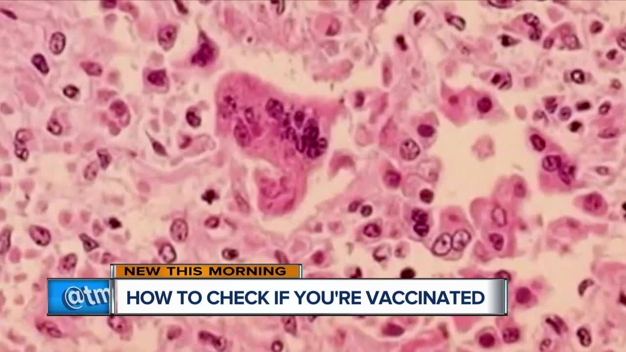 Six things to know about measles (and the measles vaccine)