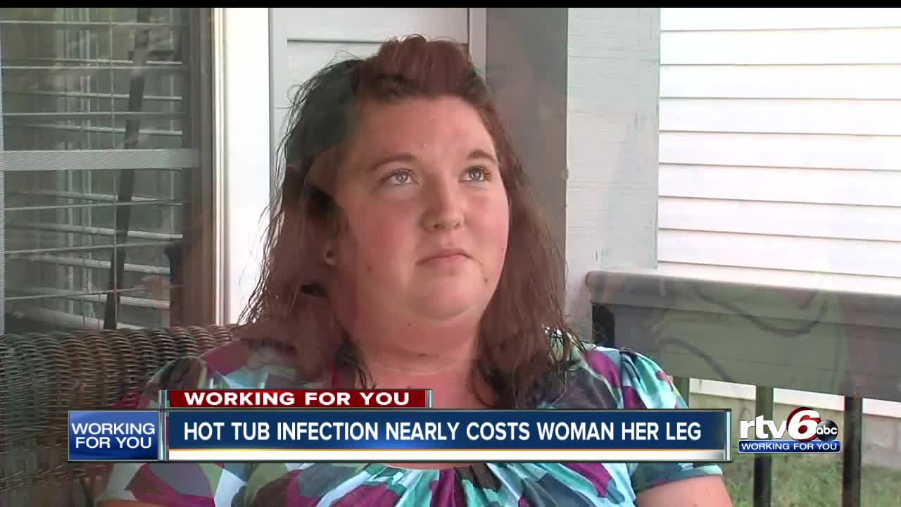 Woman Nearly Lost Leg Due to Deadly Bacterial Infection from Hot Tub