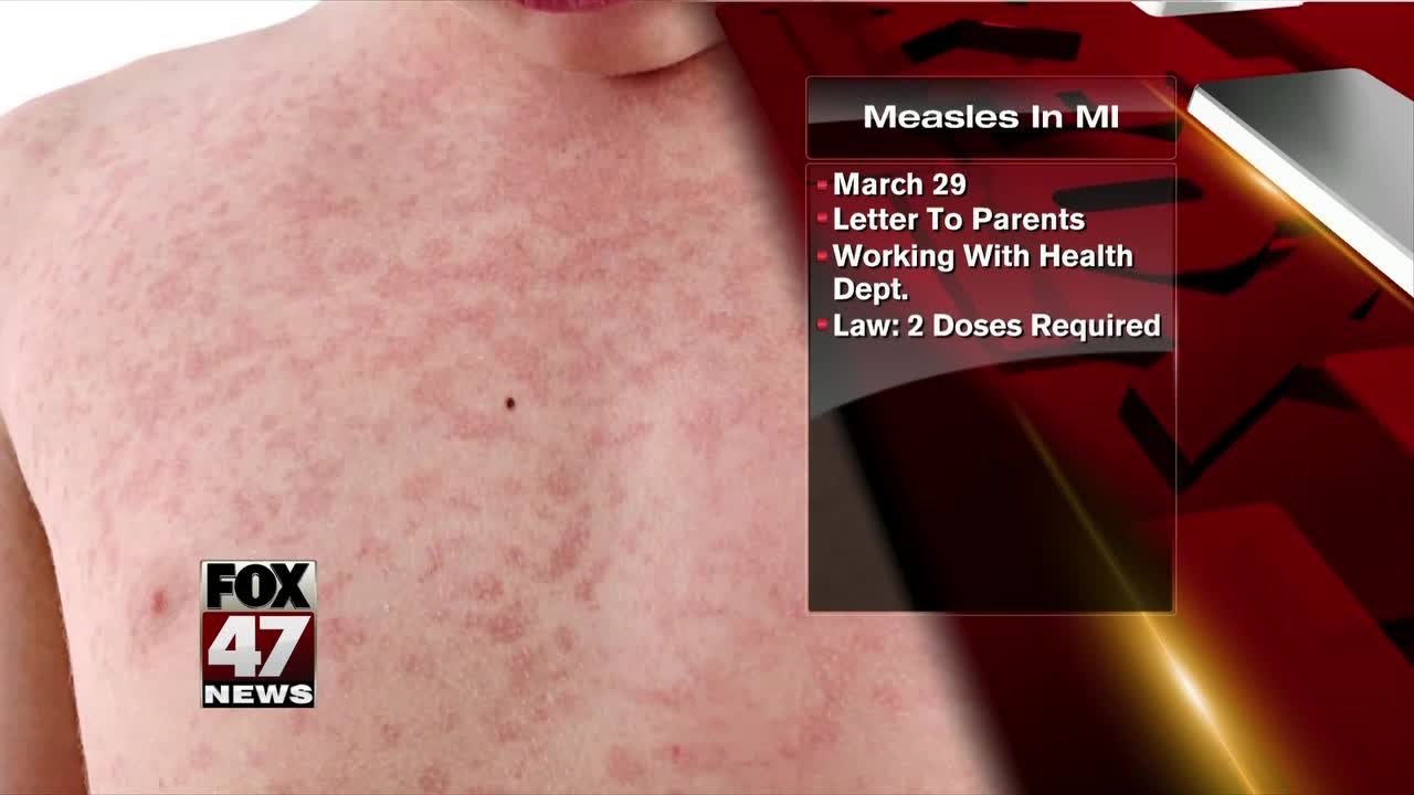 Four measles cases linked to Mount Maunganui