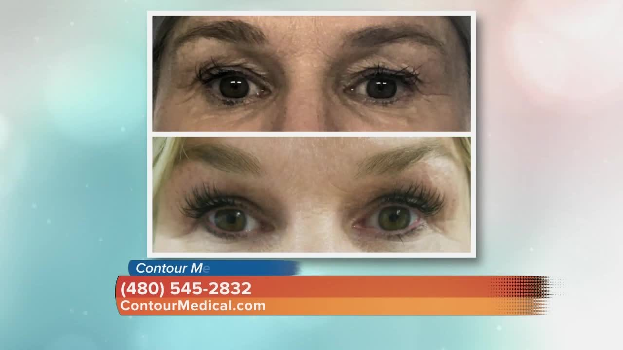 Contour Medical: Agnus is new technology that melts fat and