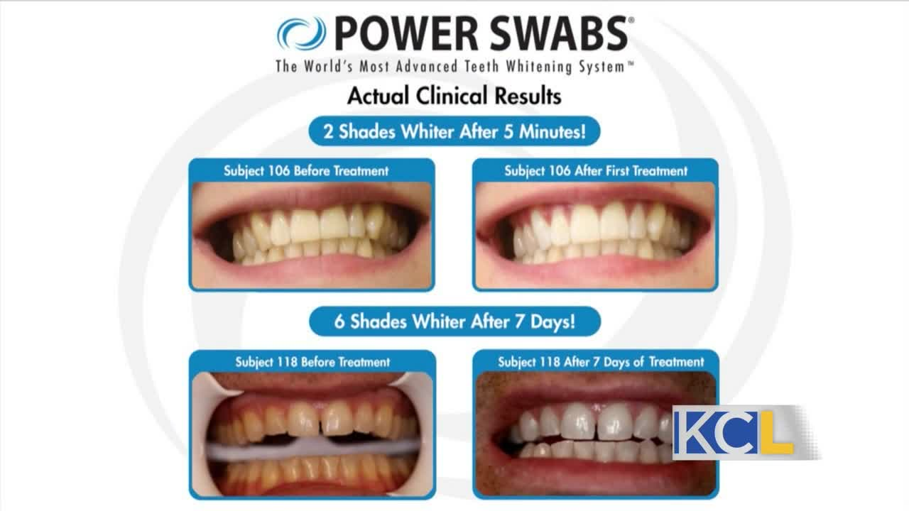 poster 0e99218b958b4af69cd1d54f97210bd3 - Quick and easy teeth whitening in a week with Power Swabs