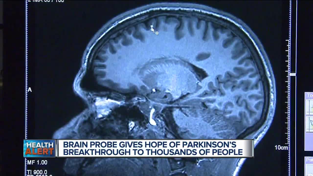 Brain implant offers Parkinson's hope