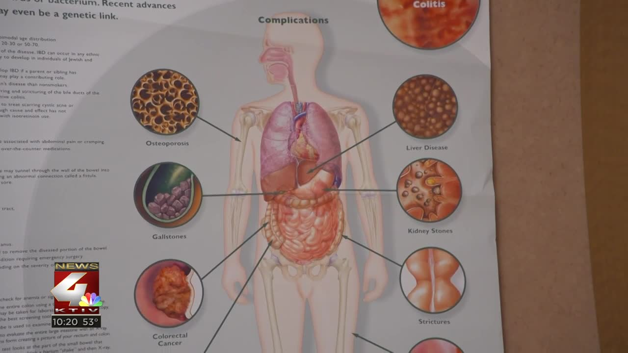 Healthbeat 4 Detecting And Treating Colon Cancer