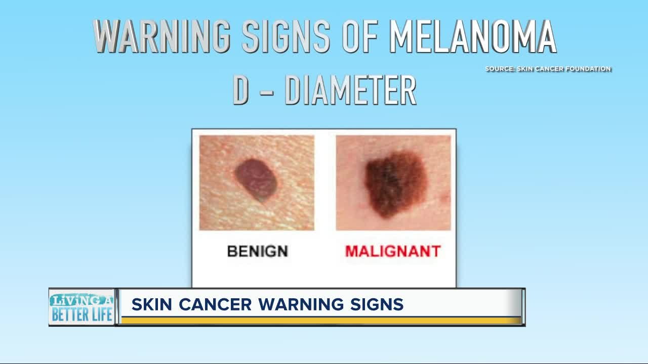 Can You Spot Skin Cancer Keep An Eye Out For These Warning Signs