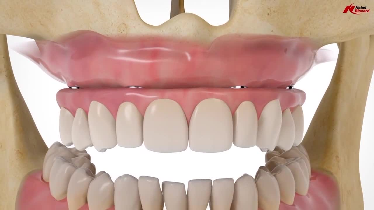 Gasser Dental Implants: How to get a new smile in one day