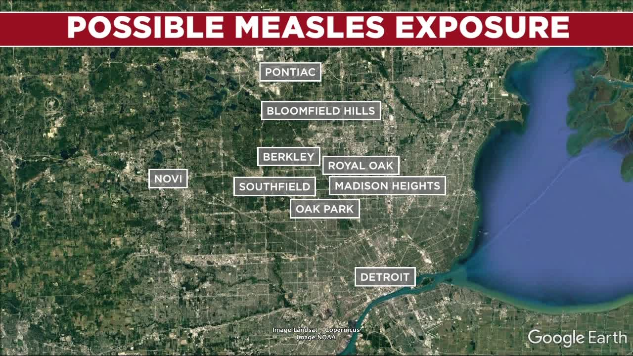 There have been four more cases of measles confirmed in Oakland County health officials said Thursday